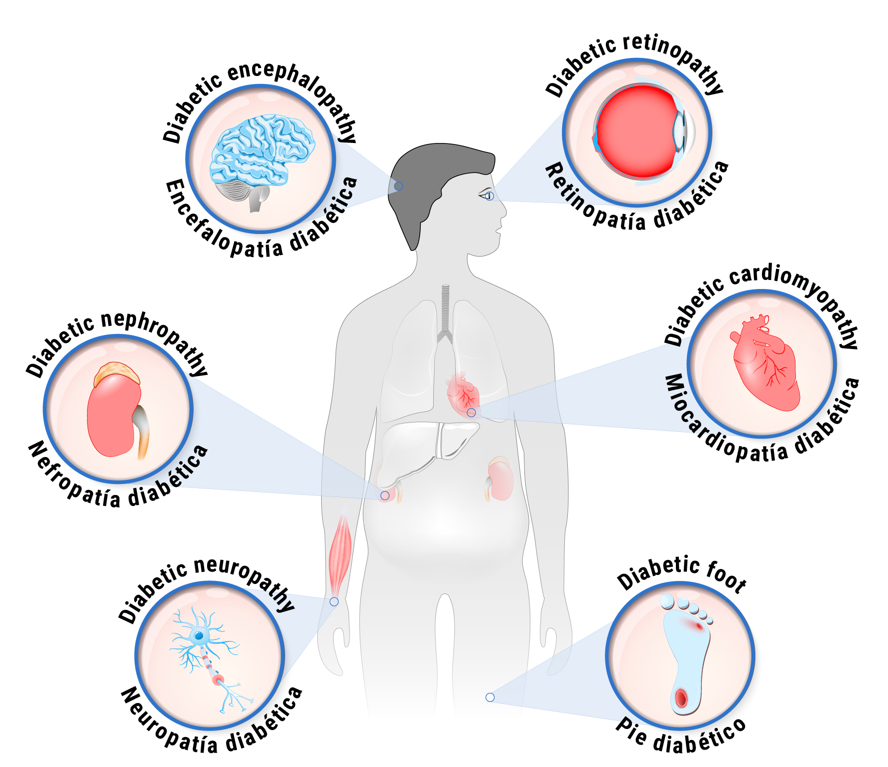 Graphic of diabetic complications